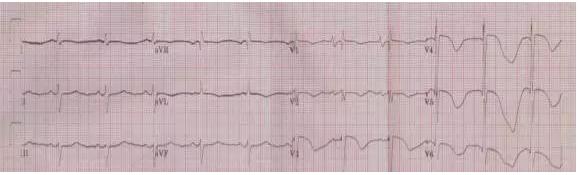 这些特征心电图改变,都是猝死的前兆