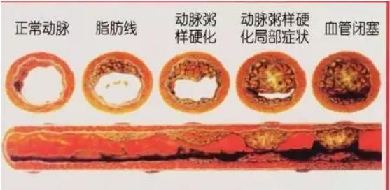 血管是怎么一天天被堵住的?这个进程越早知道,越能救命